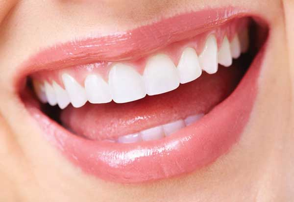 Face 2 Face teeth whitening